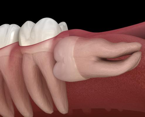 Cand se extrage molarul de minte